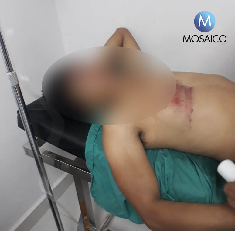 Motociclista murió en accidente